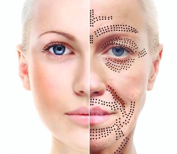 plasma fibroblast face lift